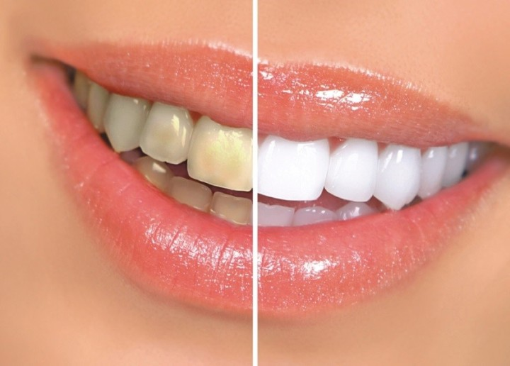 Whitening your Teeth, Before and After